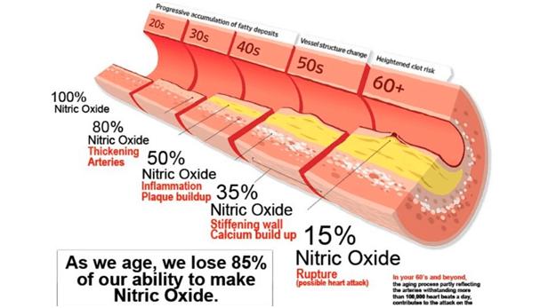 увреждане на съдовете, атеросклероза, азотен оксид намален